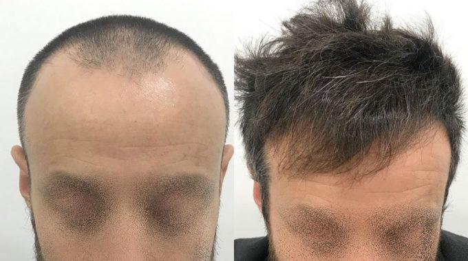 Trapianto (autotrapianto) di capelli